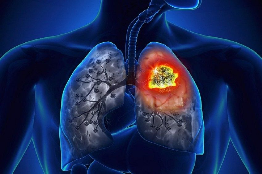 lung_cancer_570_850.jpg