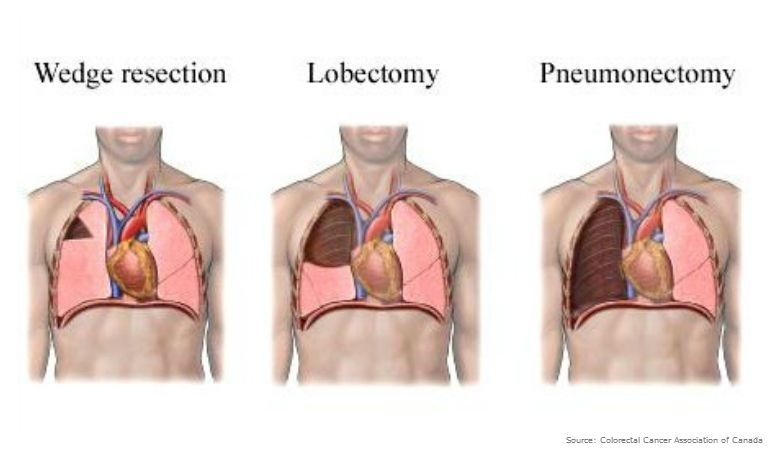 lung-metastases-diagnosis-prognosis-treatment-within-lung-cancer-surgery-recovery-time.jpg