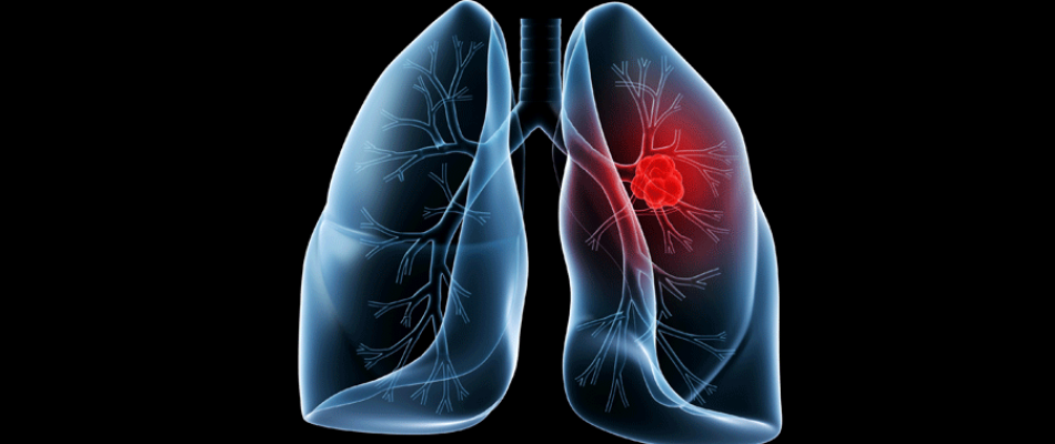 lung-950x400.png
