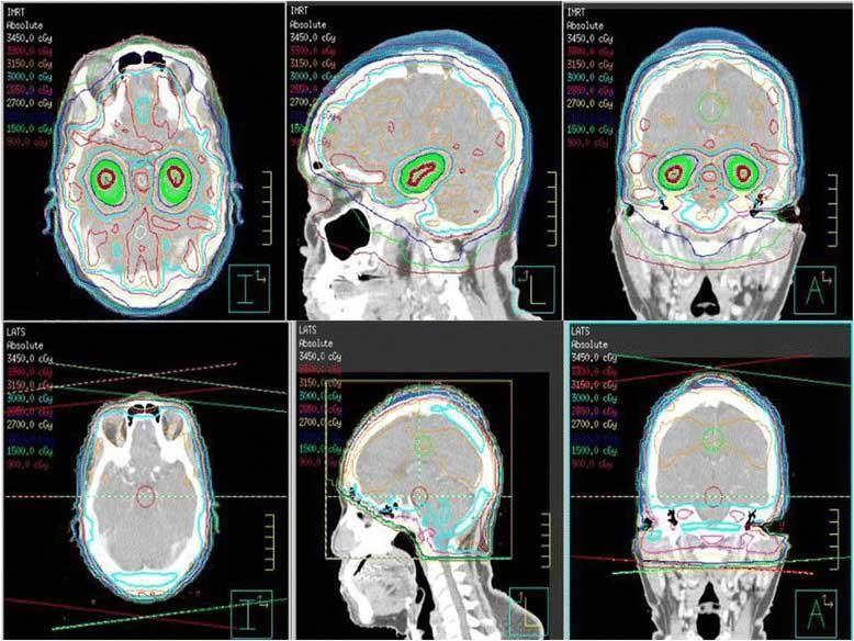 whole-brain-radiation-therapy-avoids-hippocampus-vs-standard-radiation-enalrge.jpg